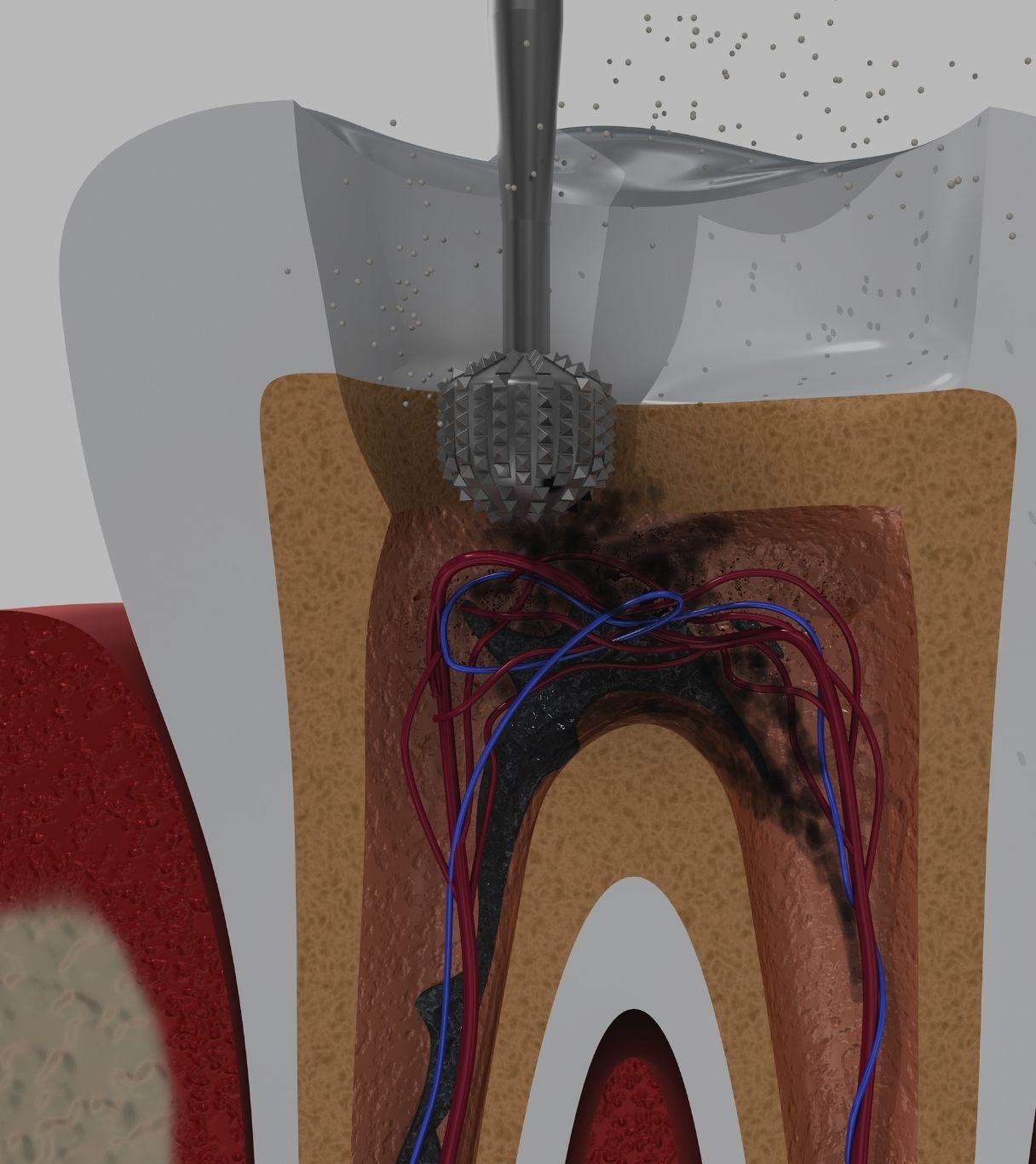 endodoncia en alcoy procedimiento