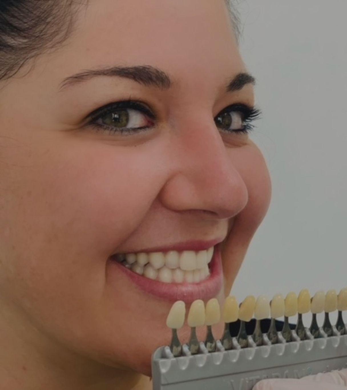 foto branqueamiento dental