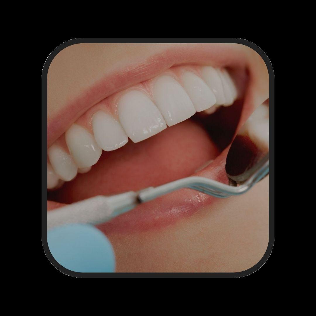 incrustaciones dentales estéticas